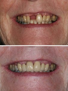 Replacement of failed front tooth with implant retained crown