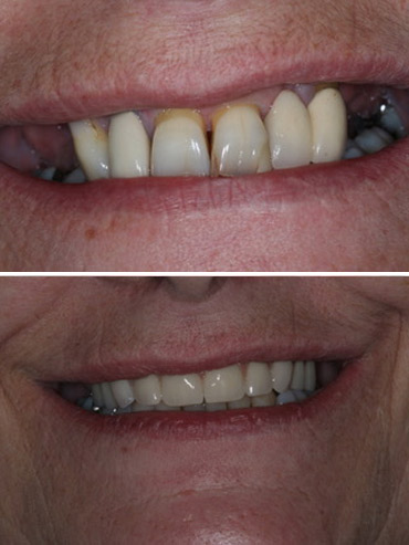 Replacement of failing upper teeth with full arch implant bridge